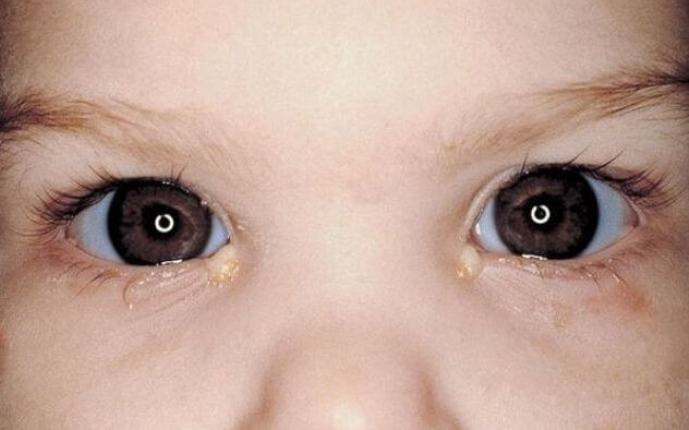 Як почінається кон'юнктивіт у дітей