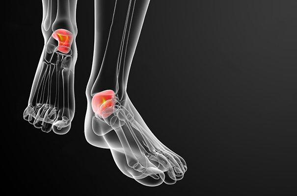 Як візначіті перелом стопи и почату лікування