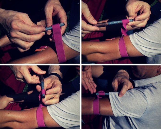 Як зупинити кровотечу кінцівок