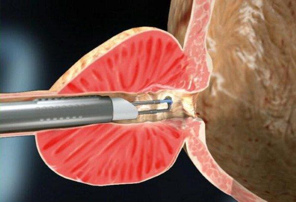 Як відрізнити місячні від кровотечі при клімаксі, викидні, позаматкової вагітності, після пологів, кесаревого розтину, припікання ерозії