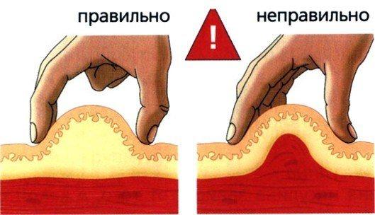 Як правильно делать уколи в сідніцю, попу внутрішньом'язово дитині, Собі.  Куди, як поставити, бий