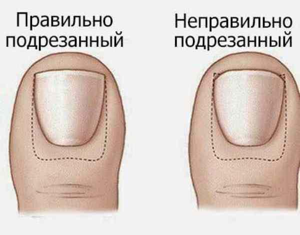 Як правильно стригти нігті