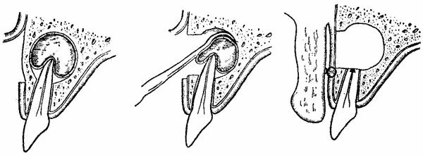Як проводитися лікування кісті щелепи?