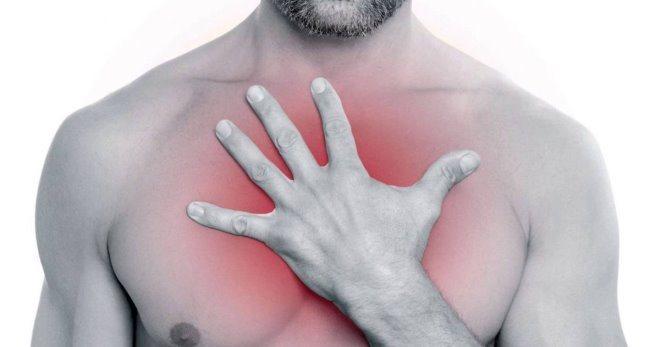 Як проявляється і лікується синдром Титце