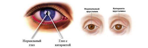 Як проявляється катаракта