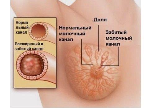 Як проявляється лактостаз