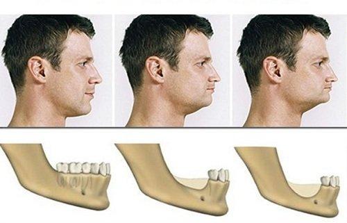 Як пов'язані повноцінній зубний ряд и Зовнішній вигляд лица