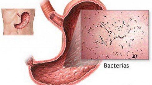 Як Виглядає вірусній гастроентеріт