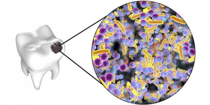 Які бактерії приводять до карієсу