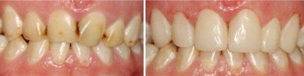 Які методи терапії ефективні при флюорозе зубів