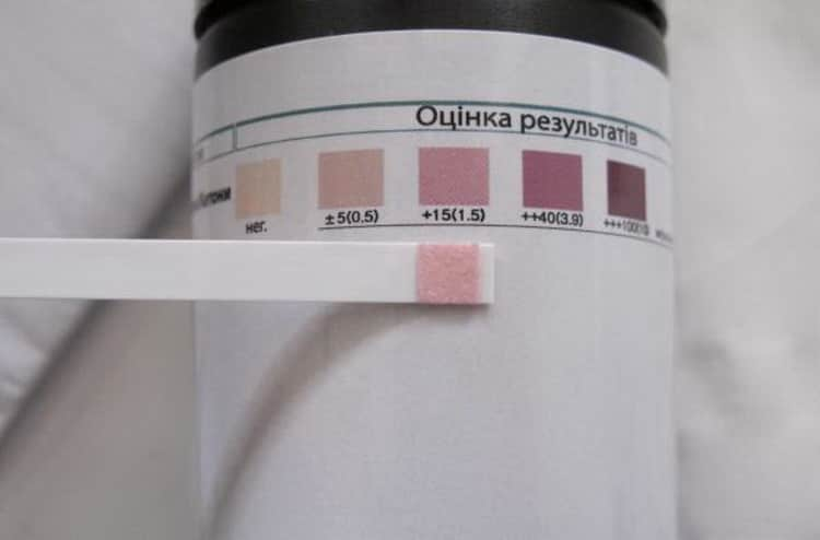 Який аналіз сечі на ацетон у дітей