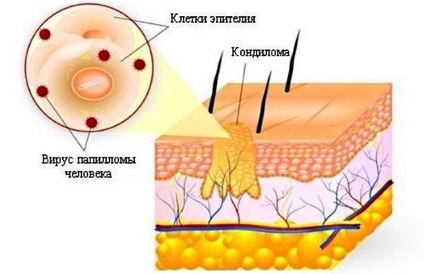 Кандиломи у жінок.  Фото, лікування вірусу, симптоми, від чого з'являються при вагітності