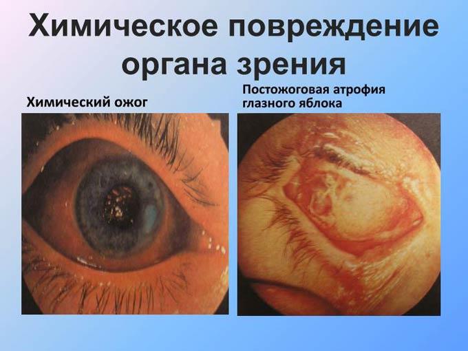 краплі від хімічного опіку очей