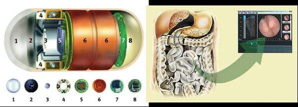 Капсульна ендоскопія шлунково-кишкового тракту