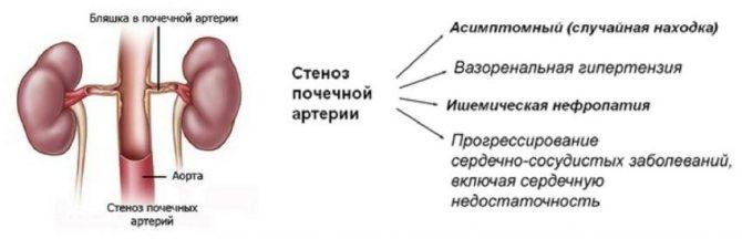 Каптоприл Сандоз - офіційна інструкція Із! Застосування