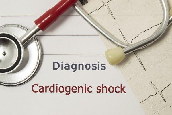кардіогенний шок
