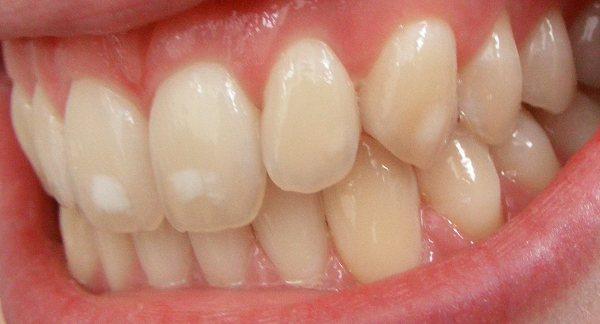 карієс на стадії плями на молочних і корінних зубах