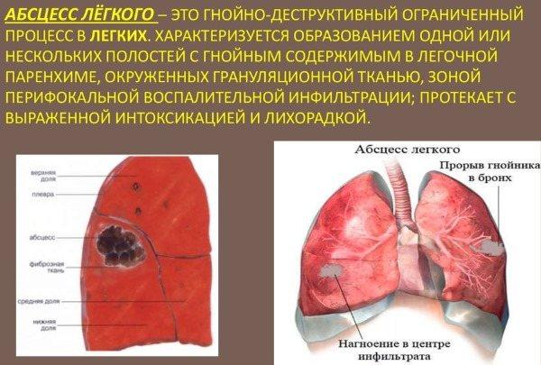 Кашель з кров'ю.  Причини, что означає при бронхіті, застуді, пневмонії, сильні у Курц