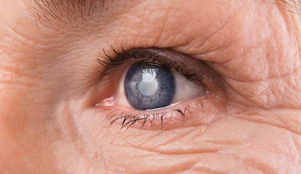 Патологія катаракта: кришталик поступово втрачає свою прозорість