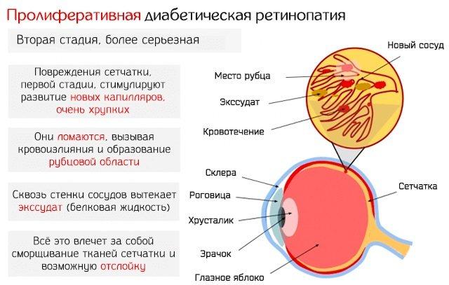 Катаракта. Причини, симптоми, лікування і профілактика. Народні засоби, операція