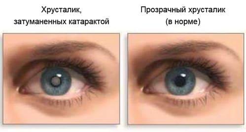 катаракта
