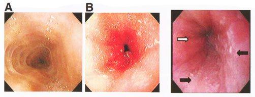 катаральний езофагіт
