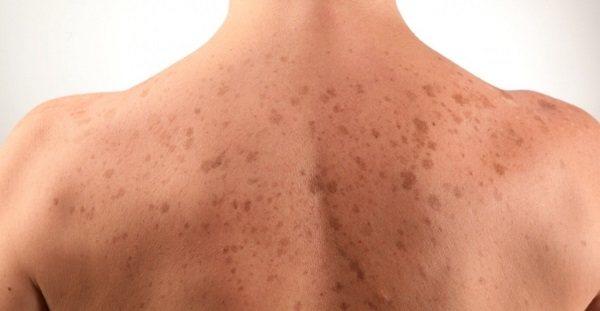 Кератоз шкіри. Фото у дорослих на обличчі, тілі. Причини, стадії, симптоми і лікування