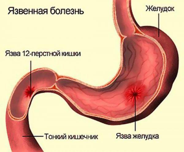Кишкові коліки у дорослих симптоми