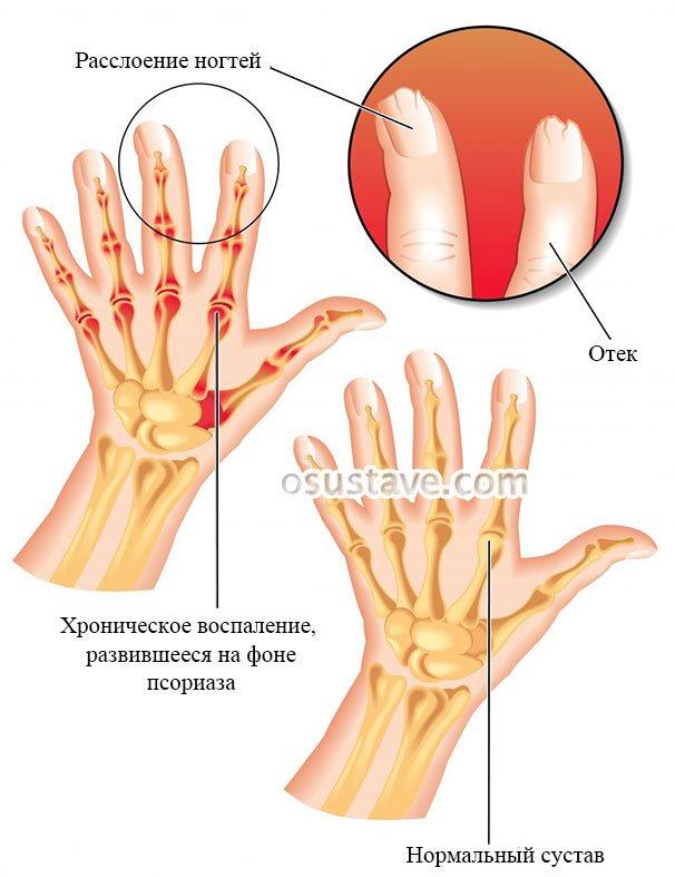 кисть при псоріатичний артрит