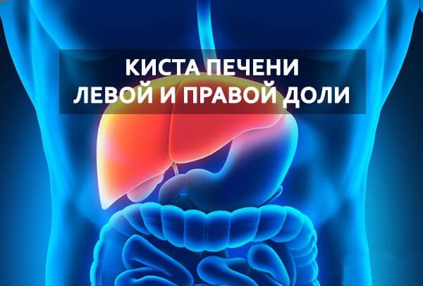 Кіста печінкі лівої и правої частин Симптоми и лікування