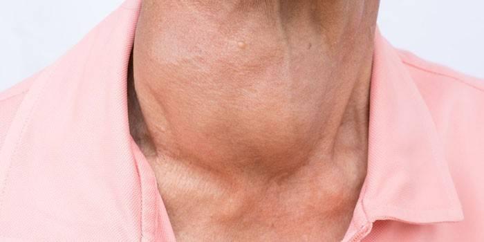 Кіста щитовидної залози