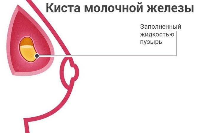 кіста в грудях