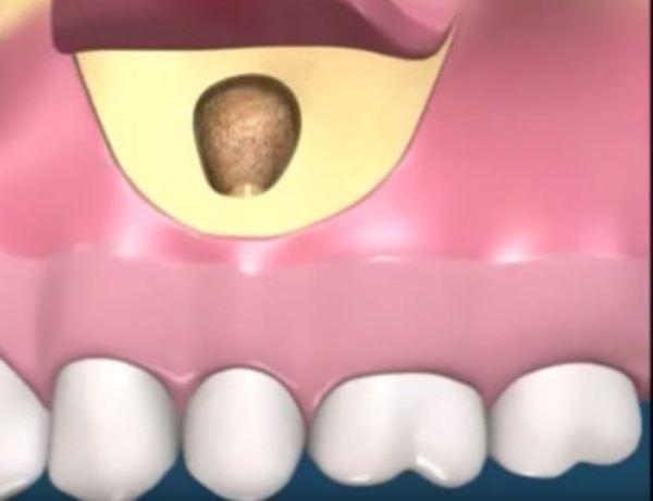 Кіста зуба симптоми фото