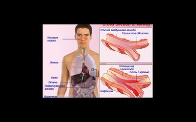 Кістозний фіброз (муковісцидоз)