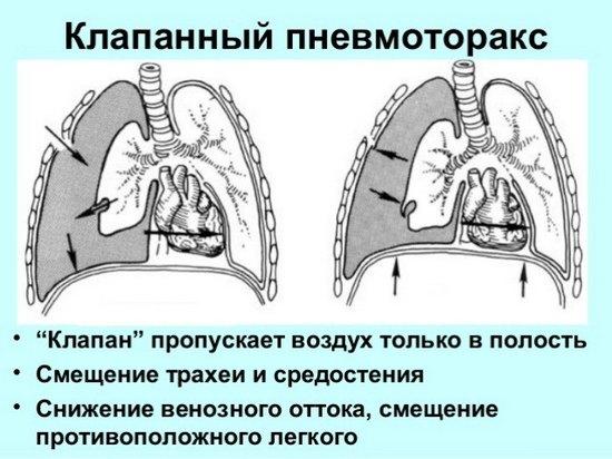 клапанний пневмоторакс