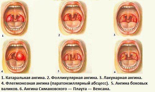 Класифікація ангіни за типом перебігу хвороби