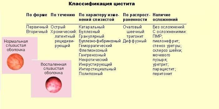 Класифікація циститу