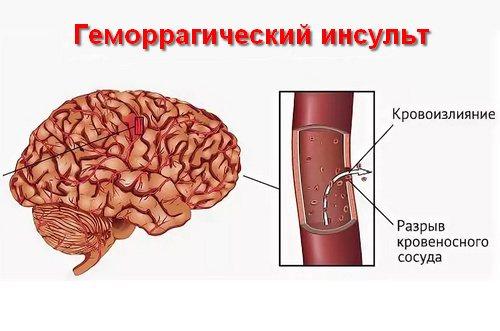 класифікація геморагічніх інсультів