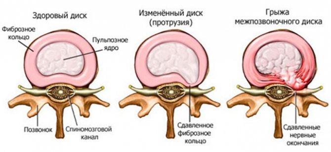 Класифікація та види захворювання