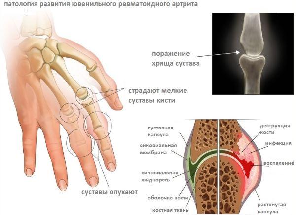Класифікація ревматоїдного артриту ураження суглобів Діагностика та класифікація артритів