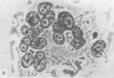 клітини Уортіну-Фінкельдея