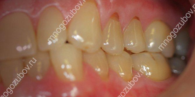Клиновидний дефект зубів