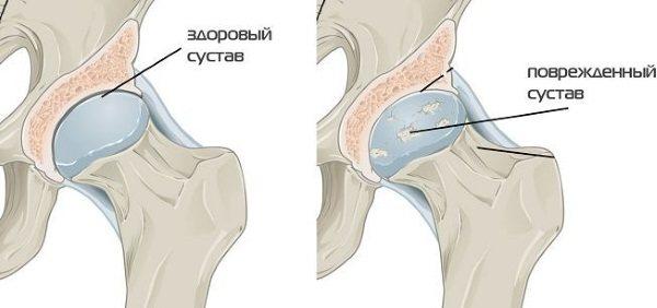 Коксартроз тазостегнового суглоба. Симптоми і лікування. Хондропротектори, ЛФК, дієта, масаж