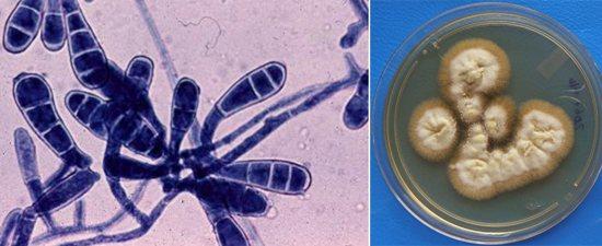 колонії патогенних грибів