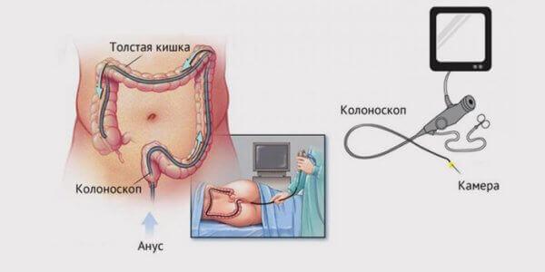 колоноскопія