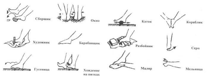 Комплекс вправ при плоскостопості у дітей