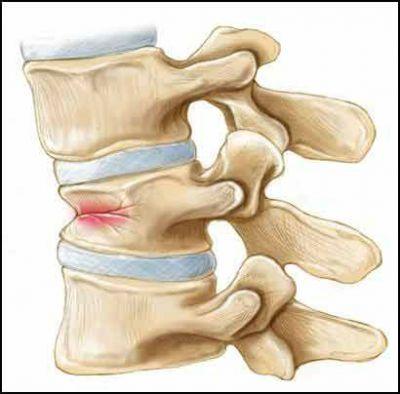 Компресійний перелом хребця