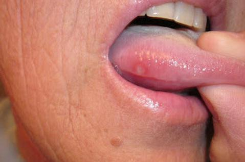 кінчик язика червоний і щипає лікування