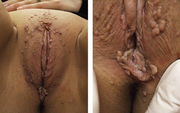 кондиломи на статевих органах у жінок