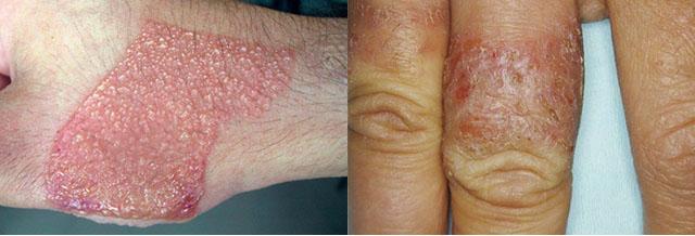 Контактний дерматит на руках